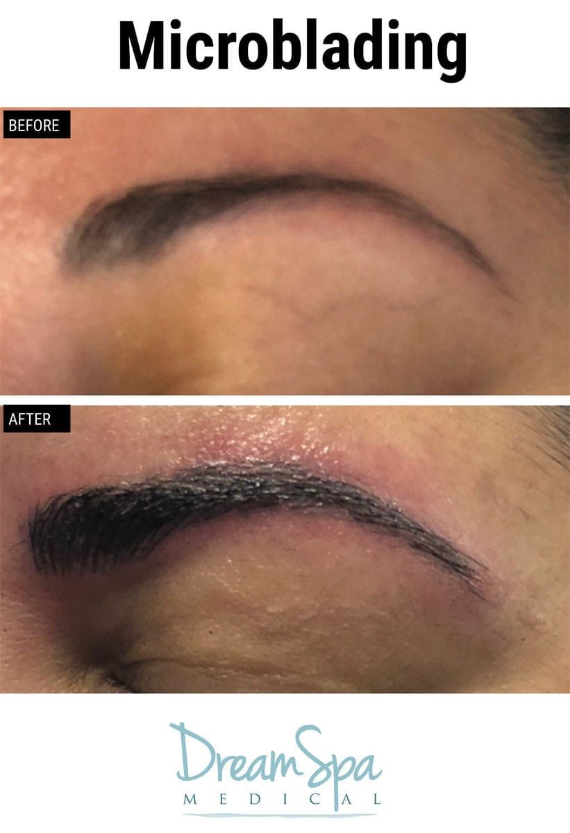 Microblading Gallery - Patient 53240035 - Image 2