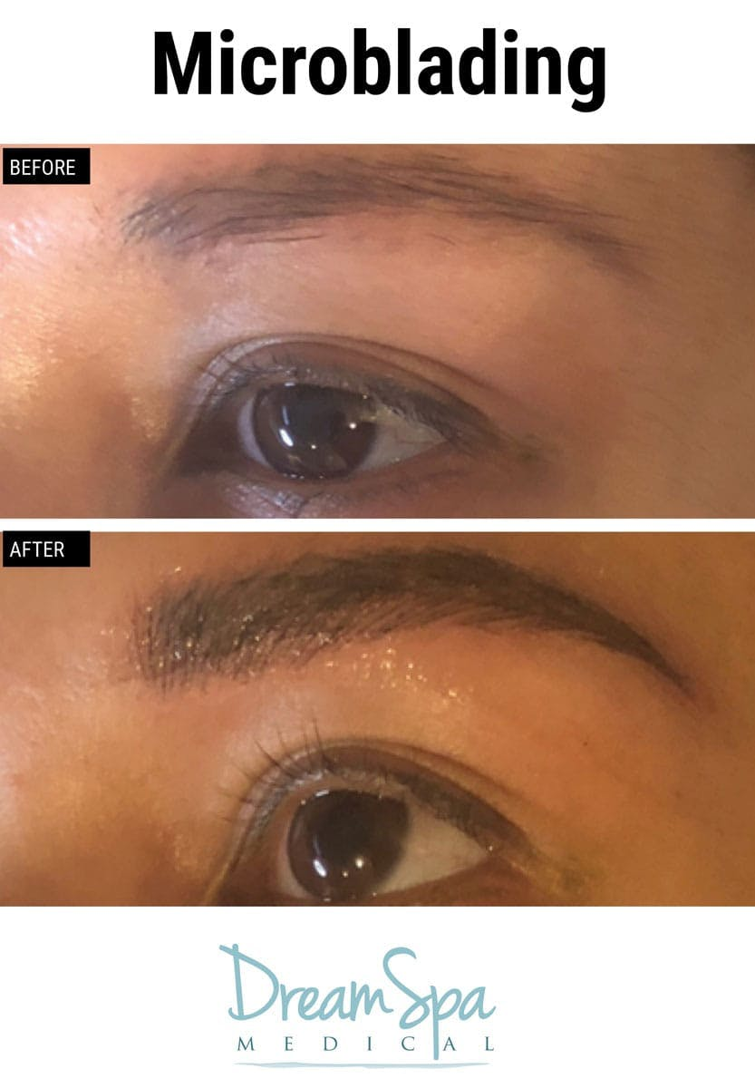 Microblading Gallery - Patient 53240034 - Image 3