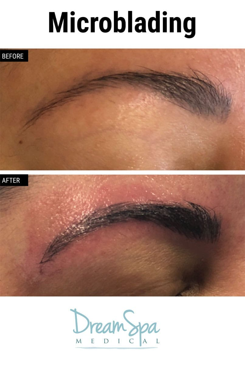 Microblading Gallery - Patient 53240035 - Image 3