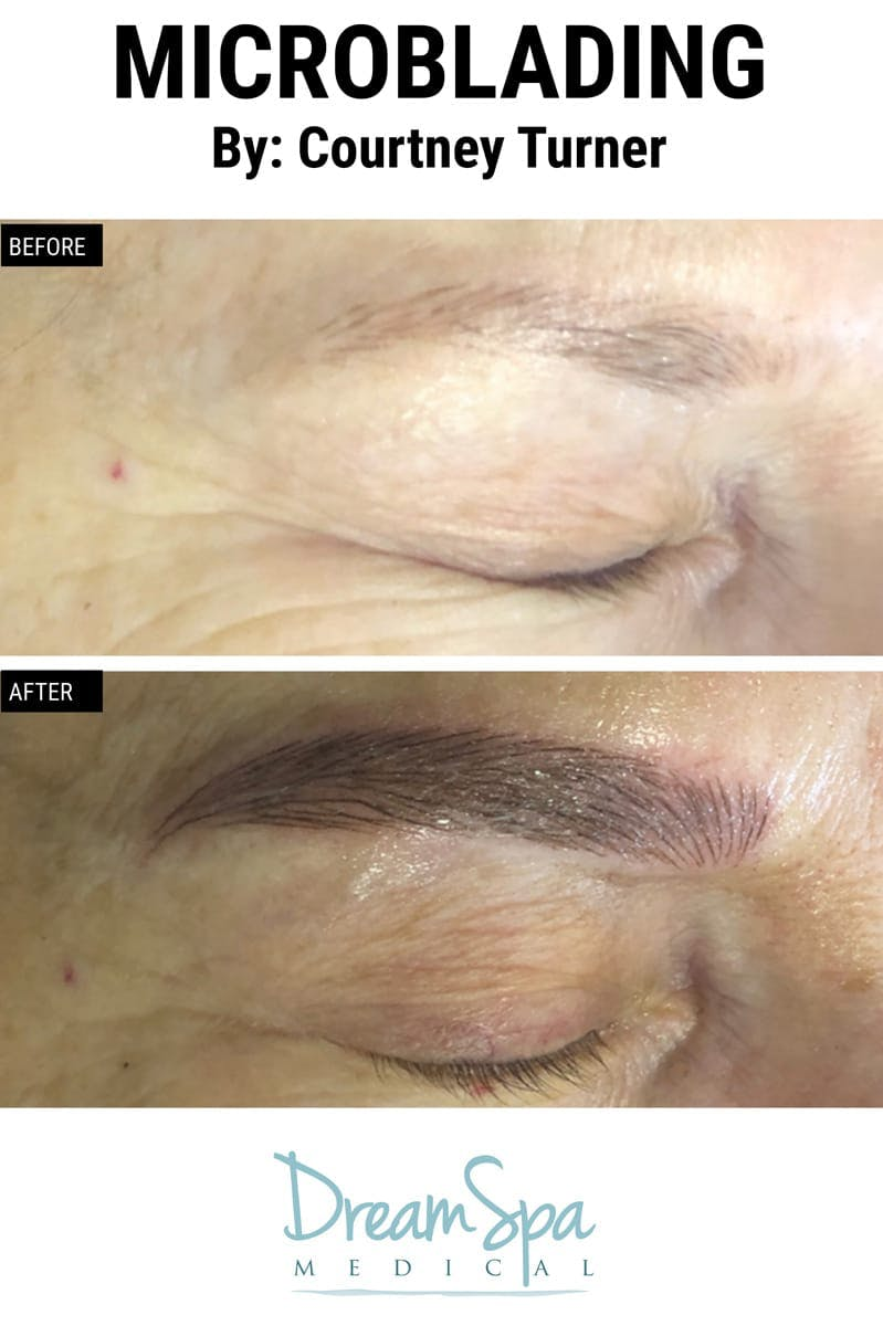 Microblading Gallery - Patient 53240036 - Image 1