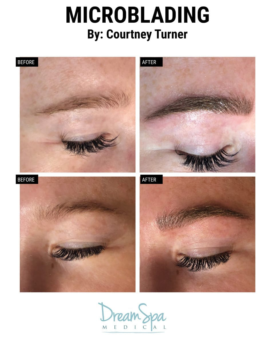 Microblading Gallery - Patient 53240038 - Image 1