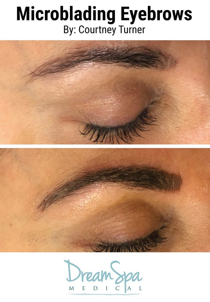 Microblading Gallery - Patient 53240039 - Image 1