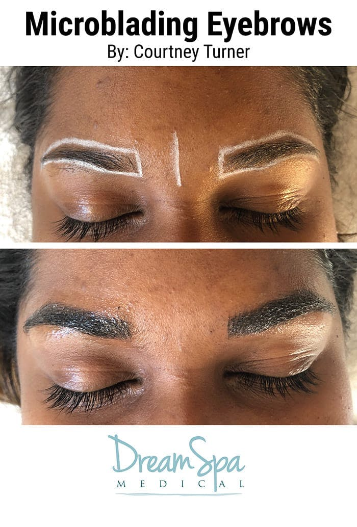 Microblading Gallery - Patient 53240040 - Image 1