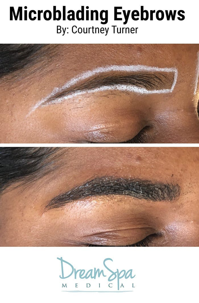 Microblading Gallery - Patient 53240040 - Image 2