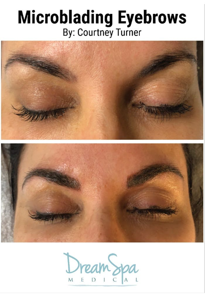 Microblading Gallery - Patient 53240041 - Image 1