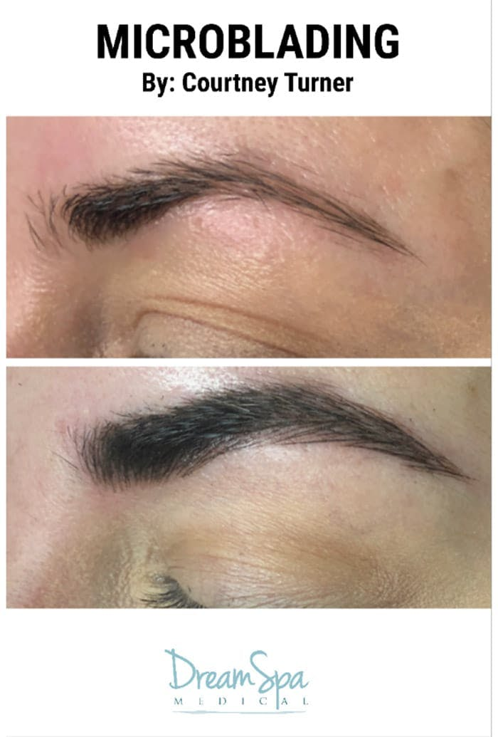 Microblading Gallery - Patient 53240042 - Image 1