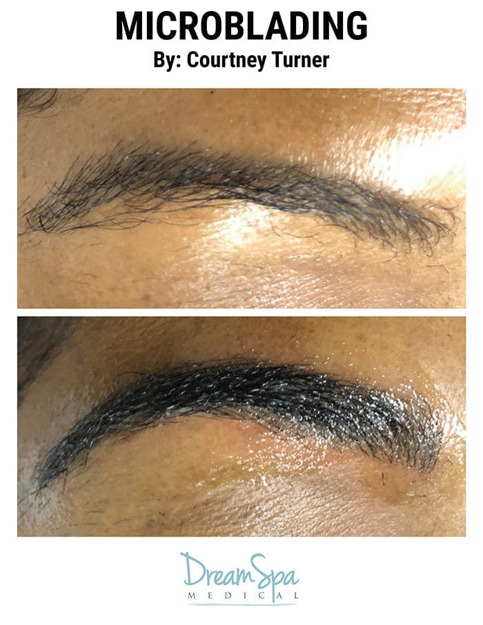 Microblading Gallery - Patient 53240043 - Image 2