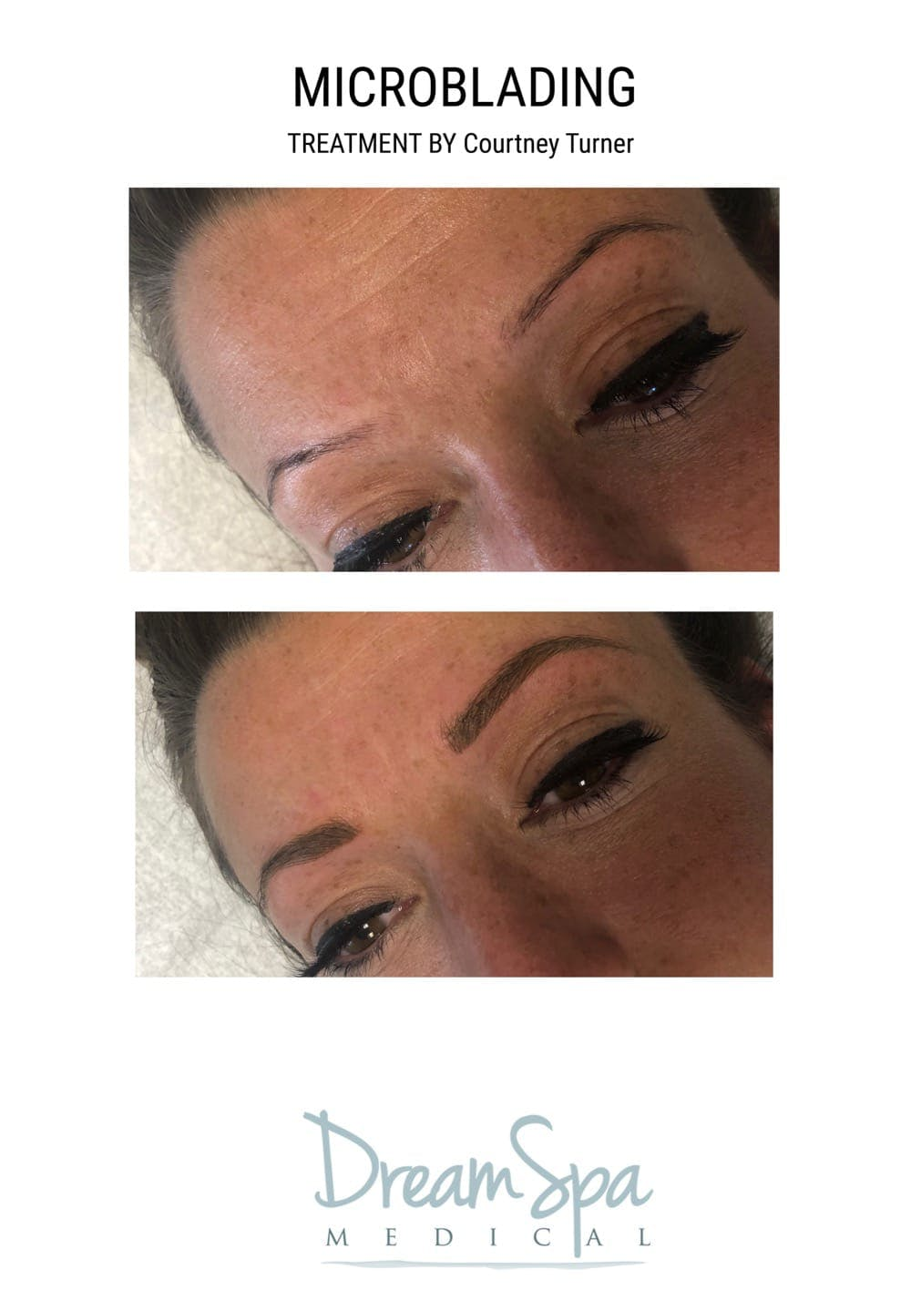 Microblading Gallery - Patient 53240044 - Image 1