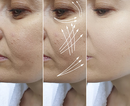 Dream Medical Spa Blog | Skin Tightening Treatment Gets Rid of Aging and Sagging Skin