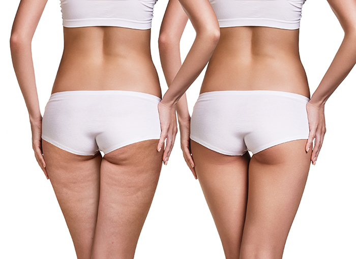 Dream Medical Spa Blog | Cellulite Treatment that has Proven, Visible Results in Adult WomenGet to know all about QWO