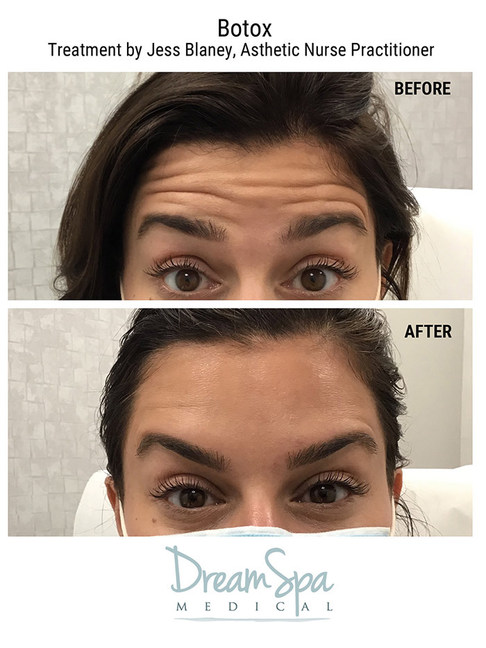 Dream Medical Spa Blog | Botox Skin Tightening Treatment for a Stunning  Glow and Natural-Looking Results