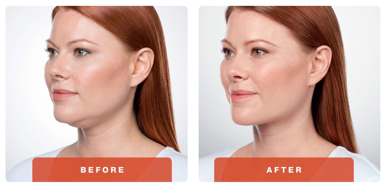 Dream Medical Spa Blog | Say Goodbye to Your Double-Chin with KYBELLA®