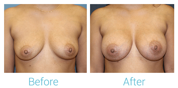 Breast Augmentation Gallery - Patient 58151779 - Image 1