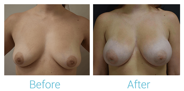 Breast Augmentation Gallery - Patient 58151780 - Image 1