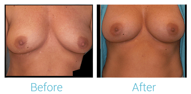 Breast Augmentation Gallery - Patient 58151781 - Image 1