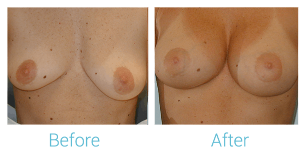 Breast Augmentation Gallery - Patient 58151783 - Image 1