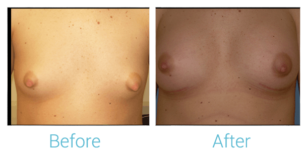 Breast Augmentation Gallery - Patient 58151784 - Image 1