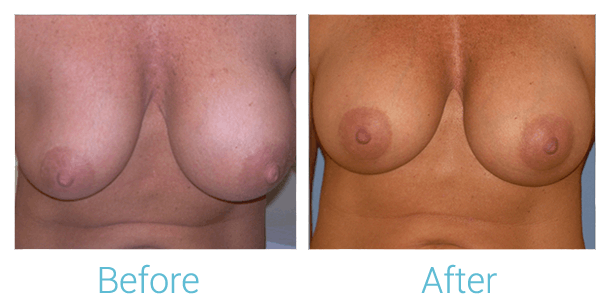 Breast Augmentation Gallery - Patient 58151785 - Image 1