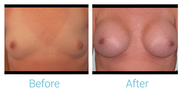 Breast Augmentation Gallery - Patient 58151786 - Image 1