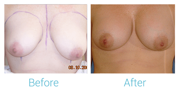 Breast Augmentation Gallery - Patient 58151787 - Image 1