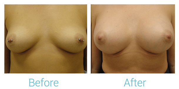 Breast Augmentation Gallery - Patient 58151793 - Image 1
