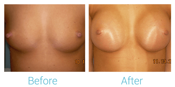 Breast Augmentation Gallery - Patient 58151794 - Image 1
