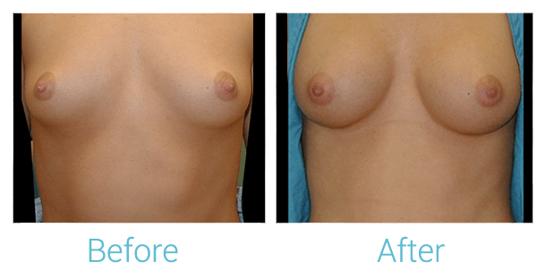 Breast Augmentation Gallery - Patient 58151795 - Image 1