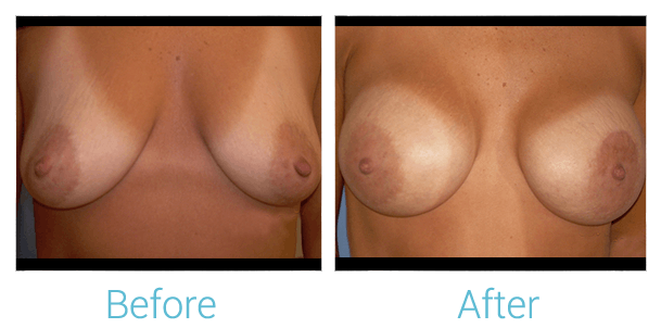 Breast Augmentation Gallery - Patient 58151796 - Image 1