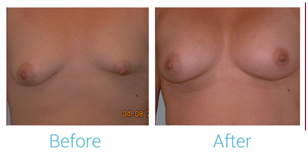 Breast Augmentation Gallery - Patient 58151797 - Image 1