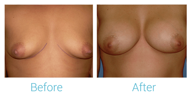Breast Augmentation Gallery - Patient 58151798 - Image 1