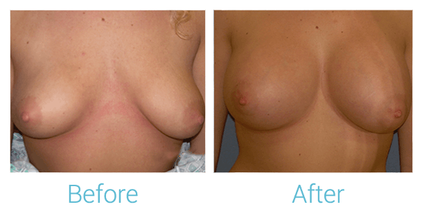 Breast Augmentation Gallery - Patient 58151801 - Image 1