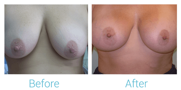 Breast Augmentation Gallery - Patient 58151810 - Image 1