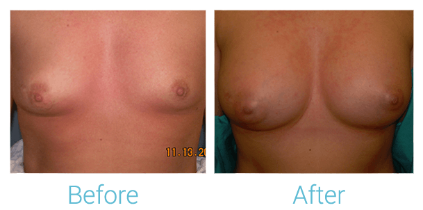 Breast Augmentation Gallery - Patient 58151811 - Image 1