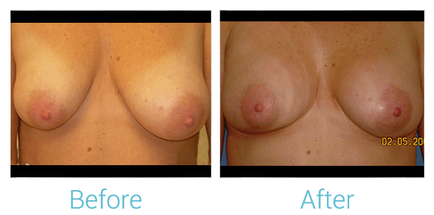 Breast Augmentation Gallery - Patient 58151812 - Image 1