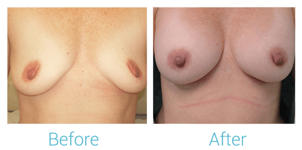 Breast Augmentation Gallery - Patient 58151813 - Image 1