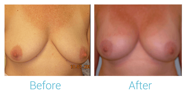 Breast Augmentation Gallery - Patient 58151814 - Image 1