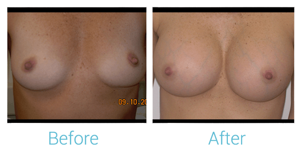 Breast Augmentation Gallery - Patient 58151815 - Image 1