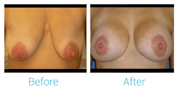Breast Augmentation Gallery - Patient 58151820 - Image 1