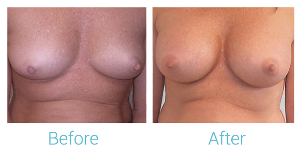 Breast Augmentation Gallery - Patient 58151840 - Image 1