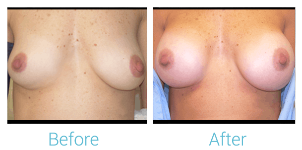 Breast Augmentation Gallery - Patient 58151841 - Image 1