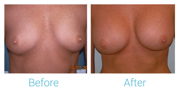 Breast Augmentation Gallery - Patient 58151842 - Image 1