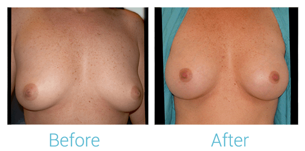 Breast Augmentation Gallery - Patient 58151843 - Image 1