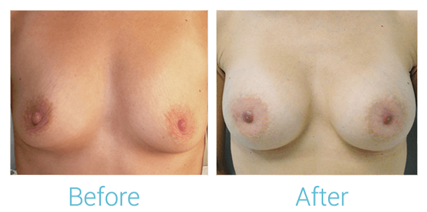 Breast Augmentation Gallery - Patient 58151844 - Image 1