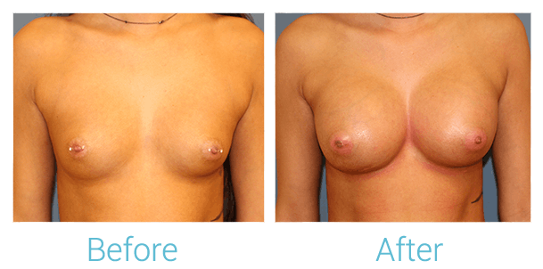 Breast Augmentation Gallery - Patient 58151845 - Image 1