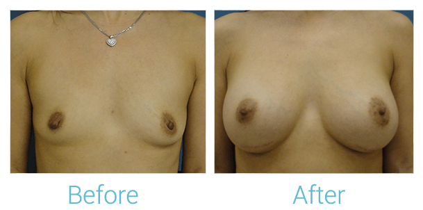 Breast Augmentation Gallery - Patient 58151846 - Image 1