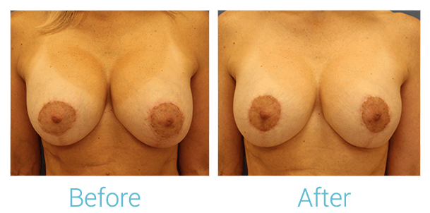 Breast Augmentation Gallery - Patient 58151847 - Image 1