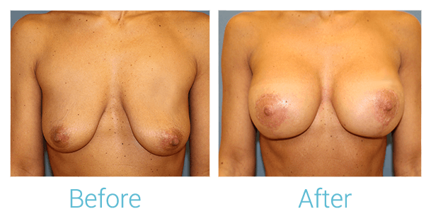 Breast Augmentation Gallery - Patient 58151849 - Image 1