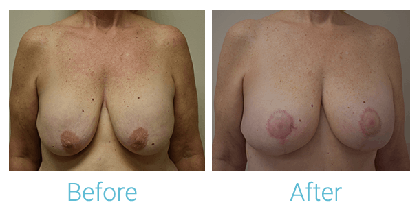 Breast Augmentation Gallery - Patient 58151851 - Image 1
