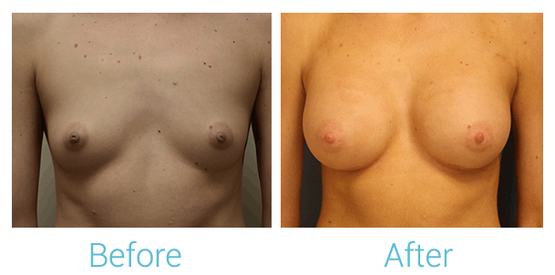 Breast Augmentation Gallery - Patient 58151852 - Image 1