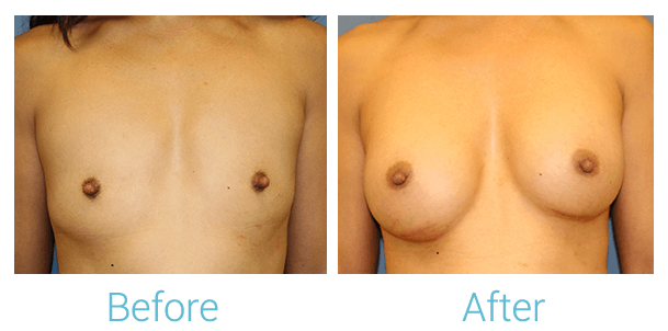 Breast Augmentation Gallery - Patient 58151853 - Image 1